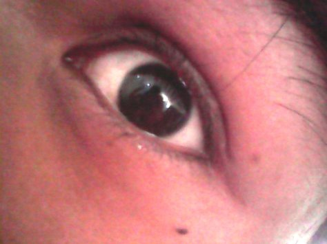 before contact lens